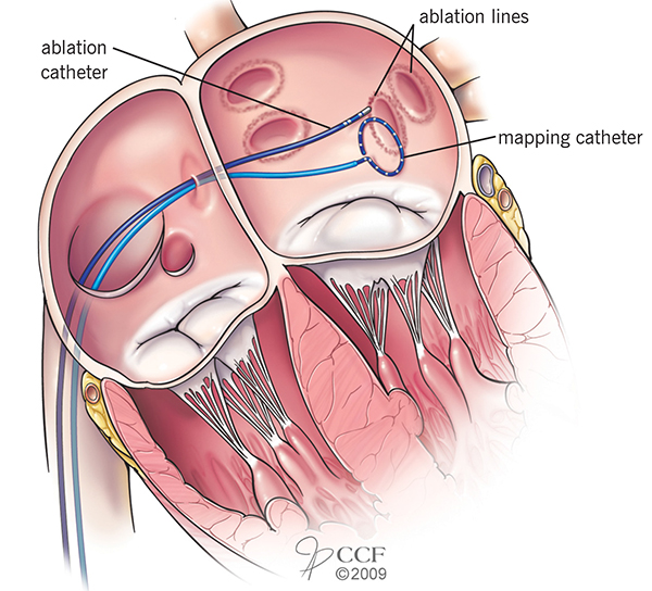Pulmonary vein ablation procedure: Energy is delivered through the tip of the catheter to tissue that is targeted for ablation. The energy is applied in a circle around the connection of the left upper and lower pulmonary veins to the left atrium. Image © Cleveland Clinic Journal of Medicine, 2009. 76(9):545. Used with permission.